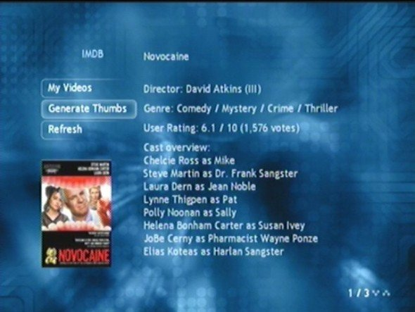 An Xbox info screen showing the IMDB info for the movie 'Novocaine'